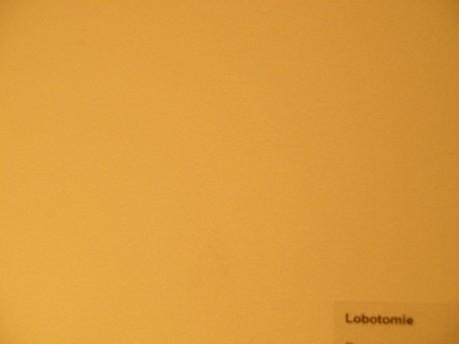 Lobotomie - Ghislain Gand Jan 09